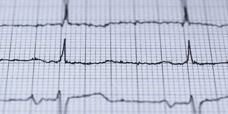 ECG-Heart rhythm