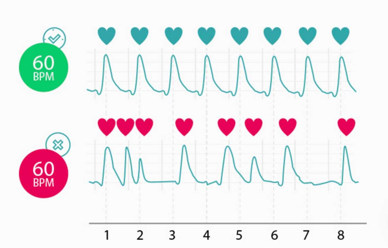 hartslag vs hartritme